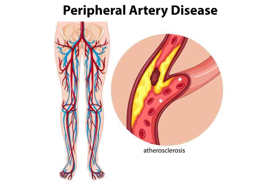 peripheral artery disease 1