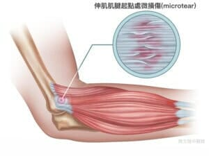 lateral elbow tendinopathy microtear info