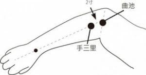 網球肘的常用針灸穴位